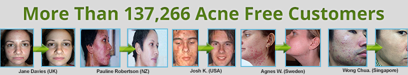 Acne No More Video - Heal Acne In 7 Days